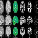 MRI dataset