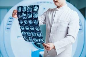 تشخیص آلزایمر با MRI