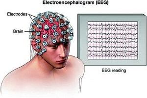 پکیج پردازش سیگنال EEG مبتنی بر سیگنال تصوری حرکتی
