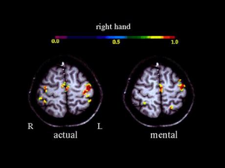 قشر حرکتی فعال مغز