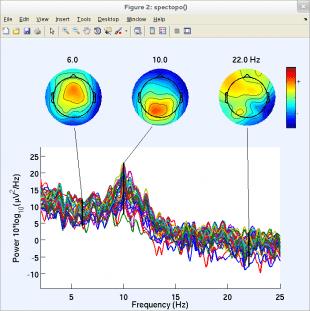 نمایش طیف فرکانسی و نقشهی توپوگرافی EEGLAB