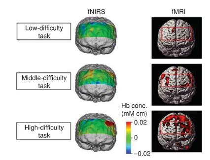نقشههای فعالیت مغزی بدست آمده از fNIRS
