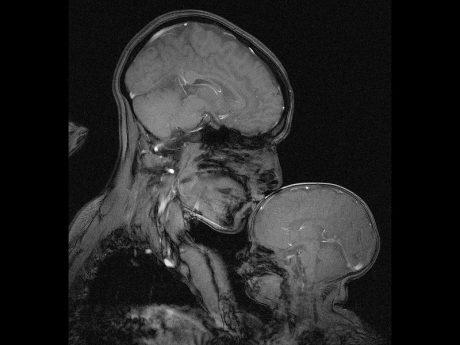 تصویر MRI از مادر و فرزند