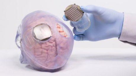 الکترودها در قشر حرکتی مغز،جاهایی از مغز که حرکت را کنترل می کنند، کاشته شده اند