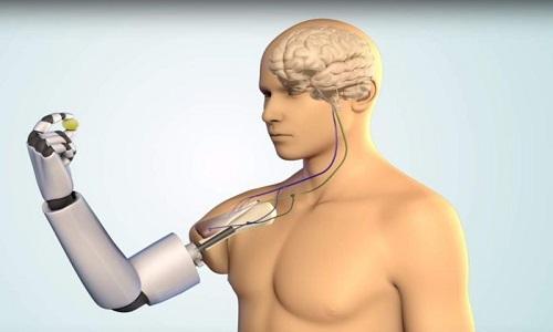 بازوهای بیونیک از جمله Hero Arm توسط افرادی که دارای نقص در اندام فوقانی هستند استفاده میشود.