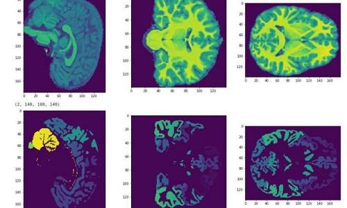 تعیین سطح هوش با MRI