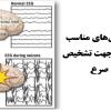 انتخاب ویژگیهای مناسب سیگنال مغزی جهت تشخیص بیماری صرع