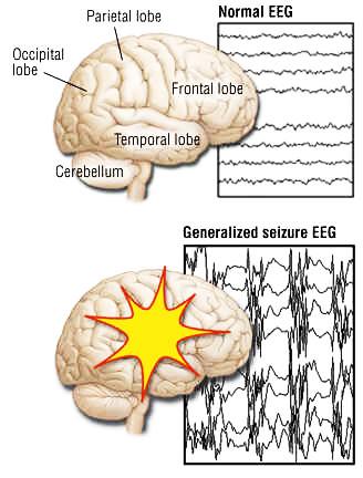 تشخیص صرع از روی سیگنال eeg