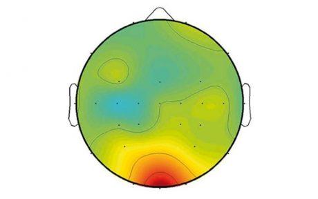 پردازش سیگنال EEG مبتنی بر SSVEP