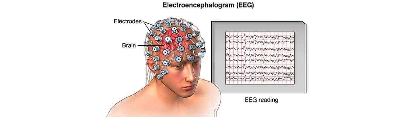 دوره جامع و تخصصی پردازش سیگنال مغزی(EEG)