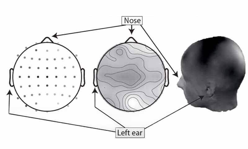 نحوه رسم نقشه توپوگرافی مغزی