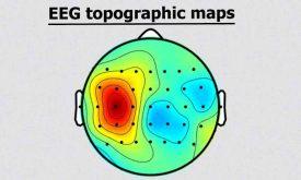 نحوه رسم توپوگرافی مغزی