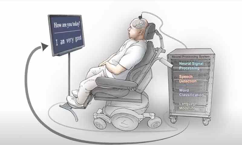 تبدیل سیگنال های مغزی به گفتار و بازیابی گفتار یک فرد فلج